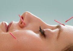 facial-acupuncture-1