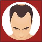 hair restoration santa cruz, balding santa cruz